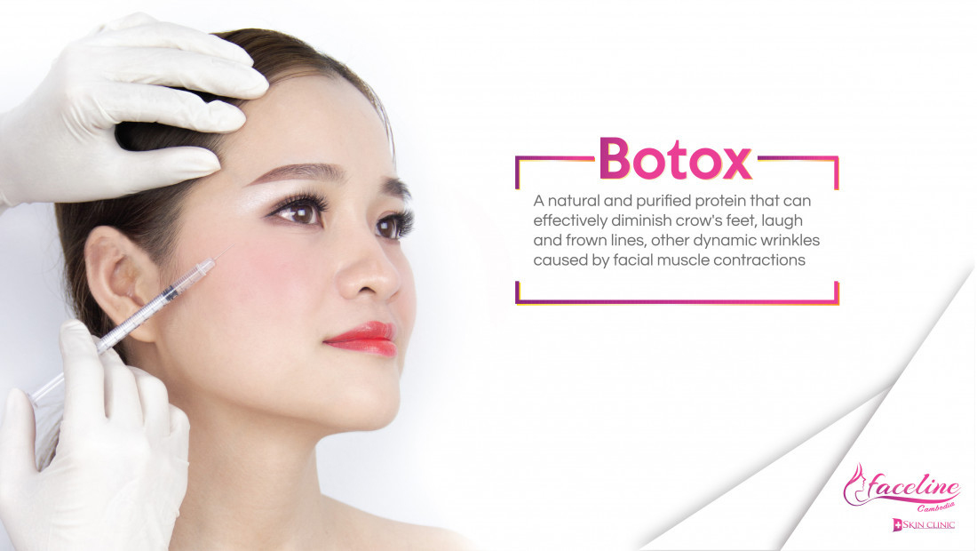 Benefits of skin treatment with Botox injection